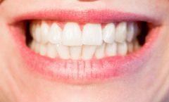 Los 10 mejores irrigadores dentales