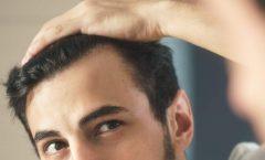 Los mejores tratamientos para la caída del cabello